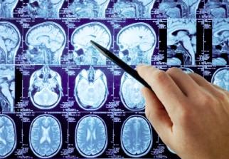 sclérose en plaques: maladie neurologique